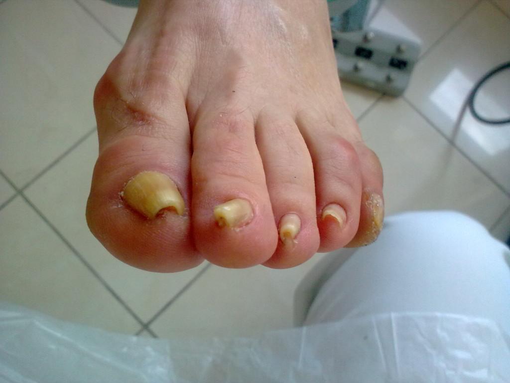 głęboko wrośnięty paznokieć